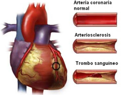 infarto arteriosclerosis